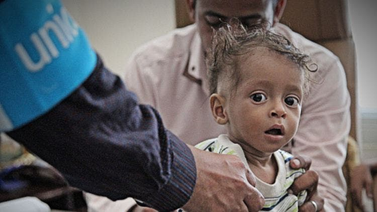 Children-Yemen-War-UNICEF-More-News-DKODING