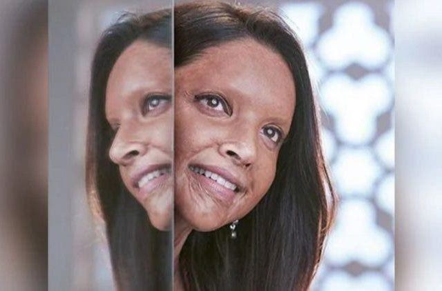 Deepika-Padukone-Chhapaak-Bollywood-Entertainment-DKODING