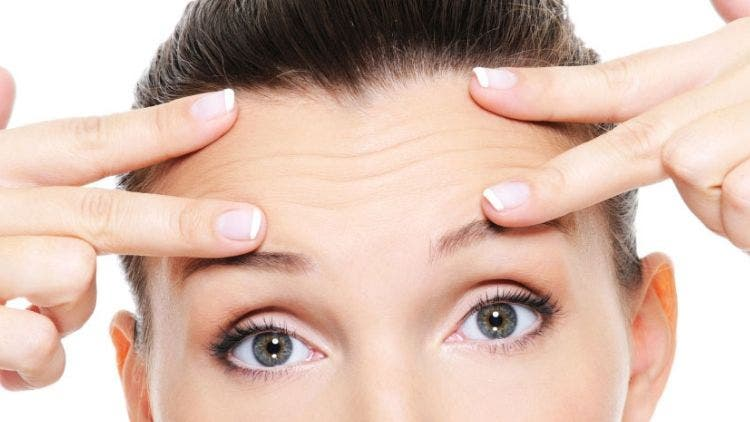 Forehead-Wrinkles-Fashion-And-Beauty-Lifestyle-DKODING
