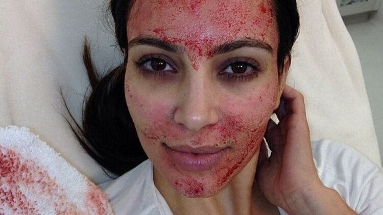 Kim-Kardashian-Vampire-Facial-Fashion-And-Beauty-Lifestyle-DKODING
