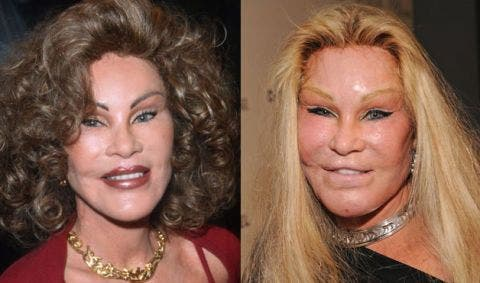 Plastic-Surgery-Blunders-In-Hollywood-2-Fashion-And-Beauty-Lifestyle-DKODING