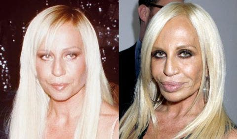 Plastic-Surgery-Blunders-In-Hollywood-3-Fashion-And-Beauty-Lifestyle-DKODING