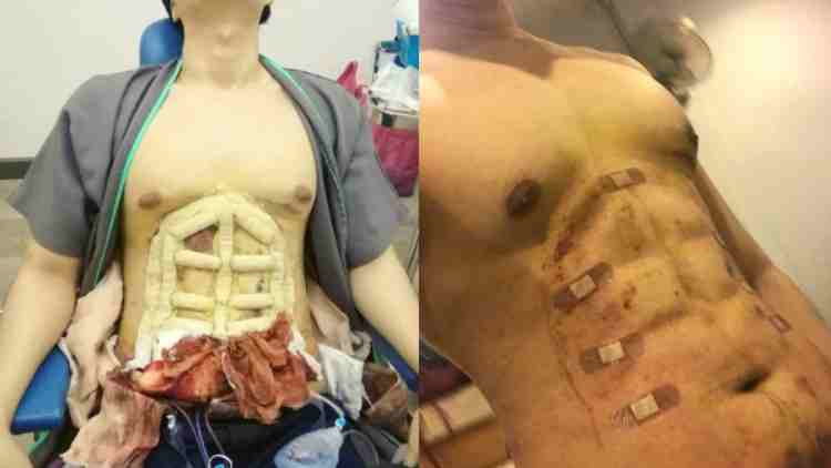 Six-Pack-Surgery-Bangkok-Features-DKODING