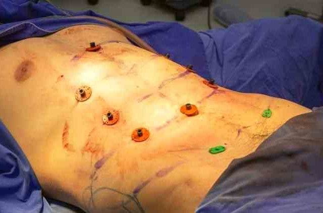 Six-Pack-Surgery-Features-DKODING